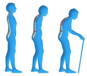 Osteoporosis: Could Selenium Reduce the Risk?